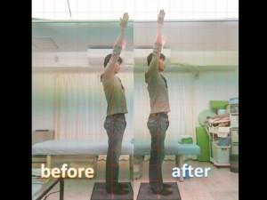 施術前には腕を上げる際に引っかかりがあったそうですが、全て無くなって楽になったと。