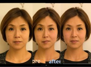 小顔before-after-中央は合成