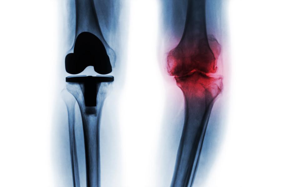 脛骨の歪み